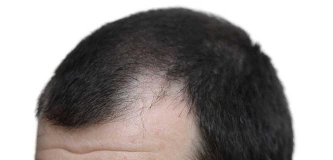 Hfs Mikropigmentacja Skóry Głowy Sposobem Na łysienie
