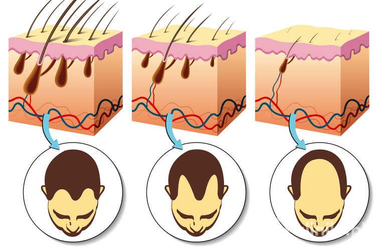 wypadanie włosów ostrzykiwanie osoczem