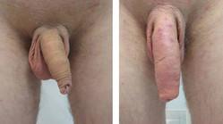 męski penis przed i po