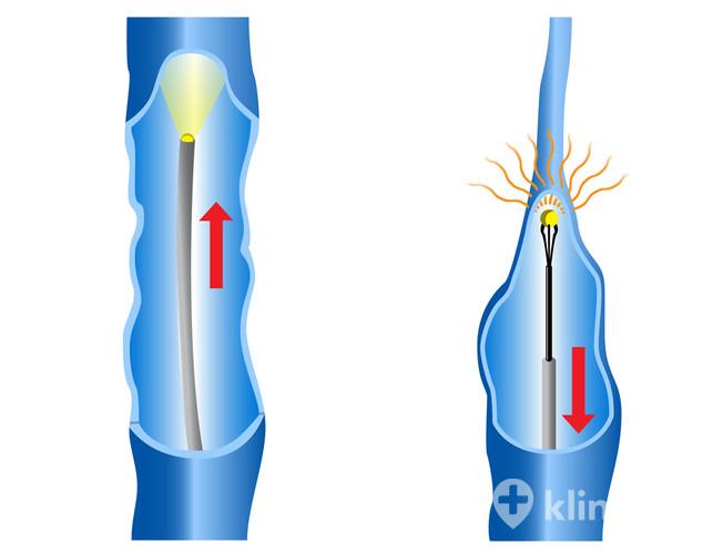 zylaki konczyn dolnych metoda evlt recovery