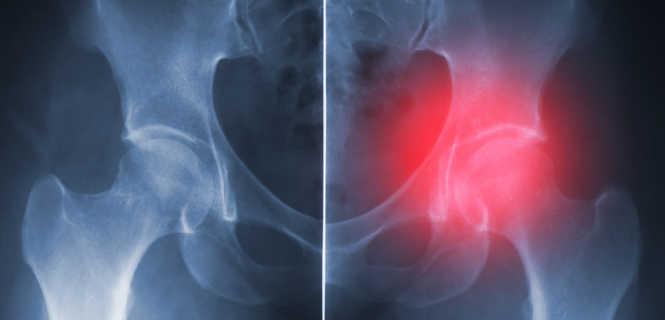 Jaka Jest żywotność Endoprotezy Stawu Biodrowego Tourmedicapl