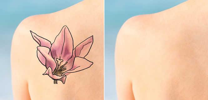Laserowe Usuwanie Tatuaży Tourmedicapl