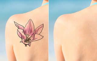 Na Czym Polega Usuwanie Tatuażu Laserem Tourmedicapl