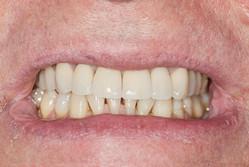 zęby porysowane penisa